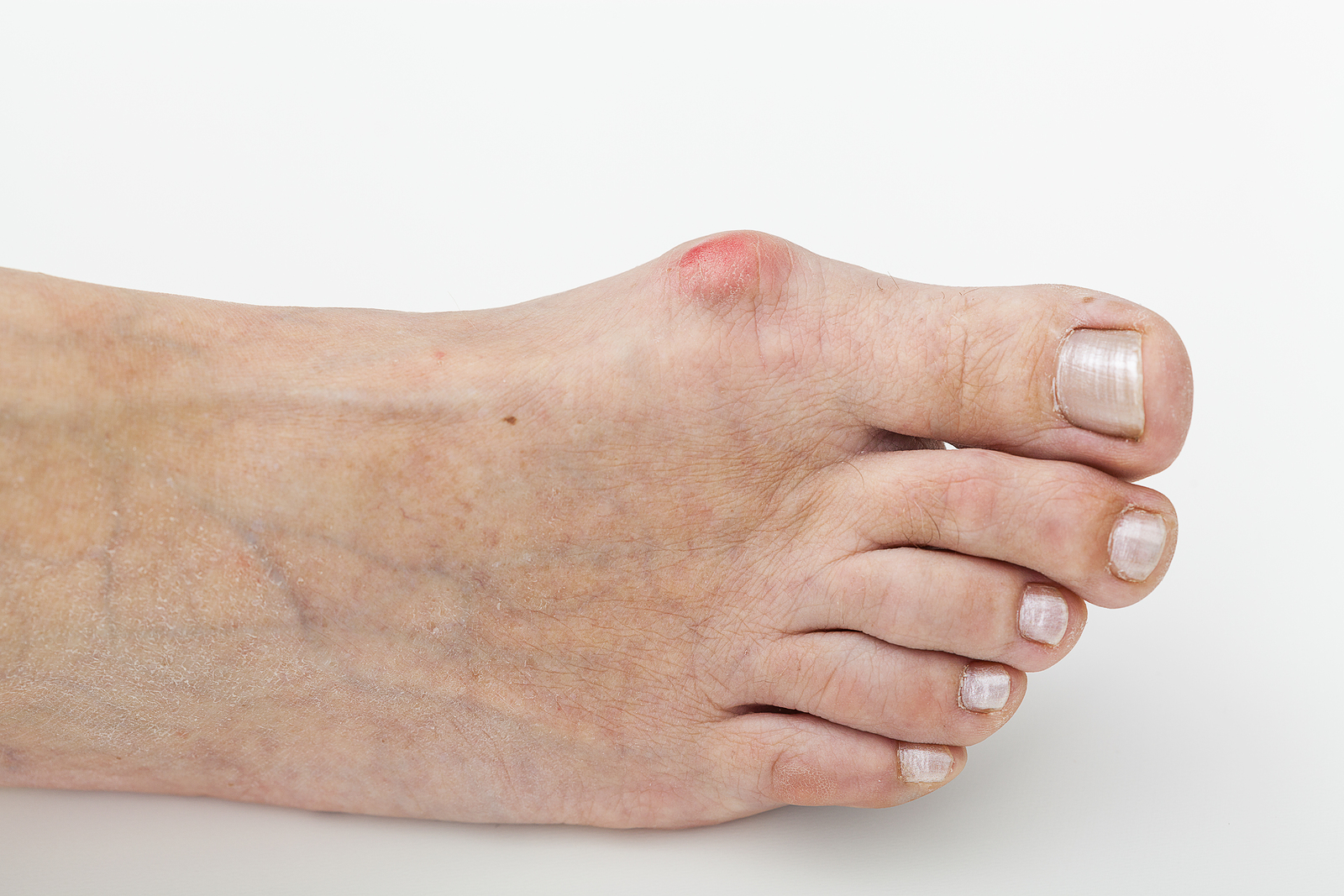 3d260f468f5 Treating Your Bunions - Podiatrist in Asheville, NC