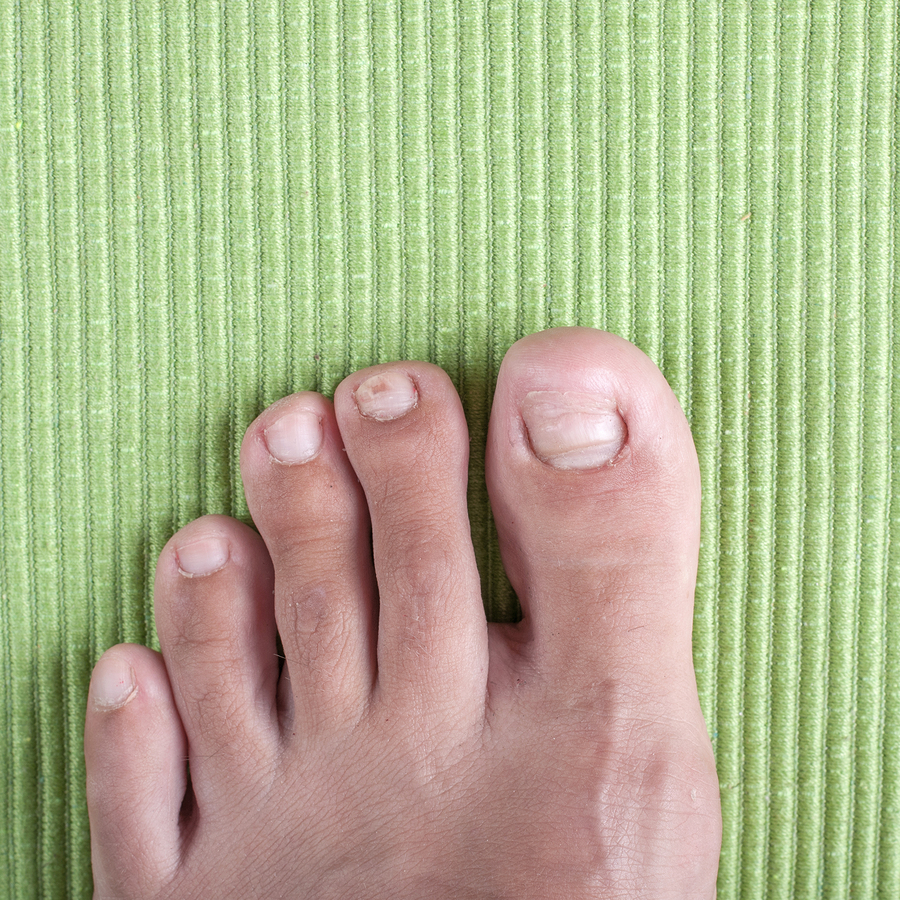 Fungus Toenails - Blue Ridge Foot Centers in Asheville, NC